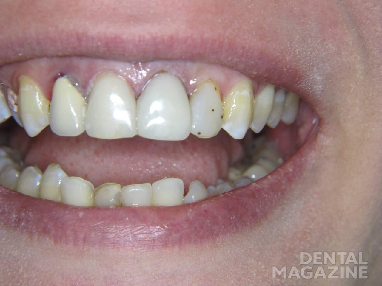 Рис. 10. Зубы 1.1 и 2.1: окончательный вид после реставрации «Амарис».