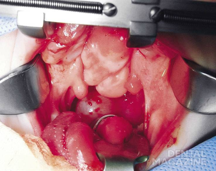 Рис. 3. Тератома полости рта и ротоглотки до операции.
