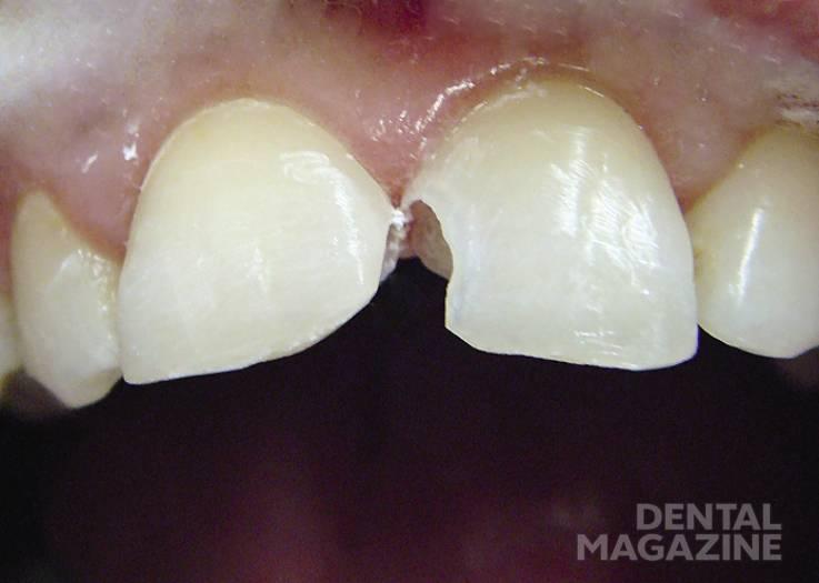 Рис. 5. Зубы после некрэктомии.