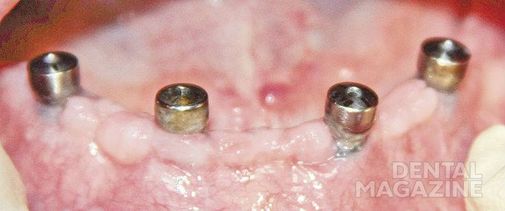 Рис. 1. Из-за недостатка прикрепленной слизистой оболочки в области имплантатов 32, 34, 44 зубов возникла рецессия десны. Со временем это может привести к потере имплантатов.