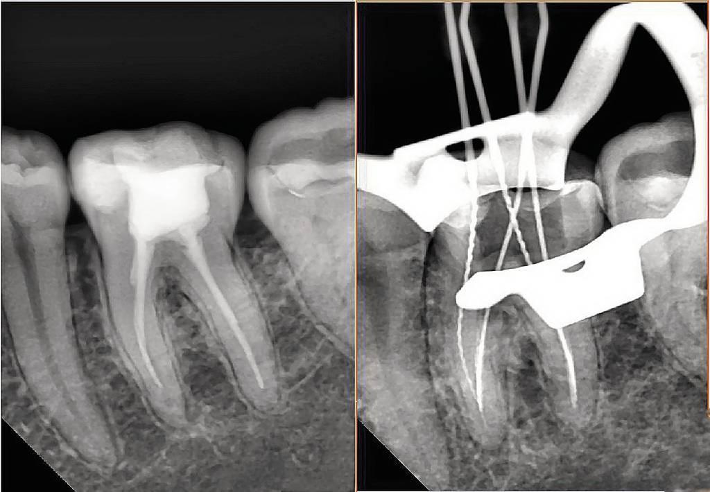 Рис. 1. Диагностический и измерительный снимки зуба 36, выполненные в прямой (а) и дистально-эксцентрической проекции (б). 36 — хронический апикальный периодонтит (К04.5) с характерными изменениями на мезиальном корне.