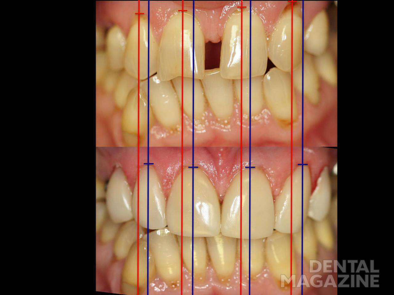 Рис. 7. Чтобы зубы не выглядели наклоненными, необходимо сместить зениты коронок.