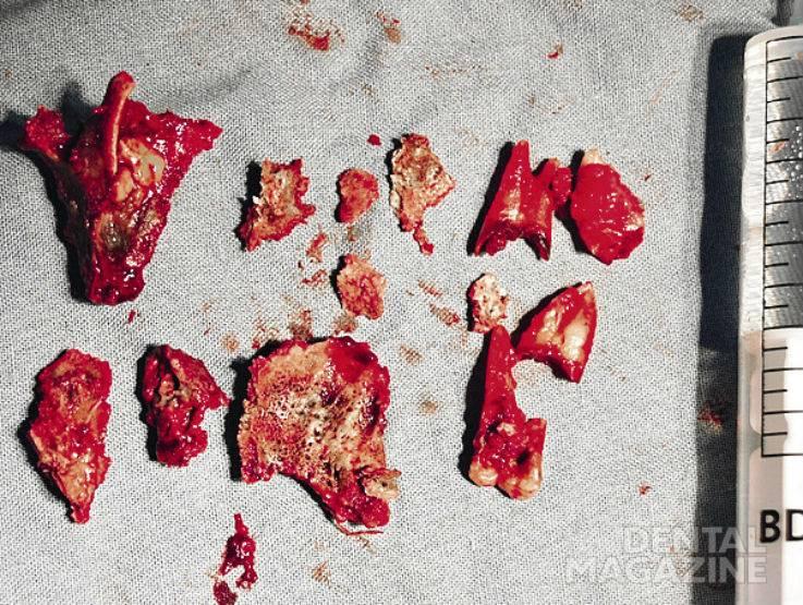 Рис. 7. Удаленные во время операции секвестры и корни зубов.