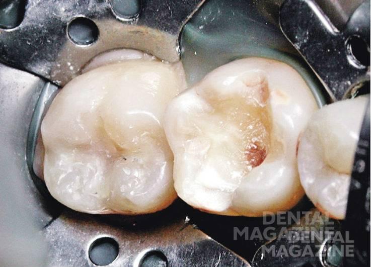 Рис. 29. Отпрепарирована кариозная полость зуба 3.6.