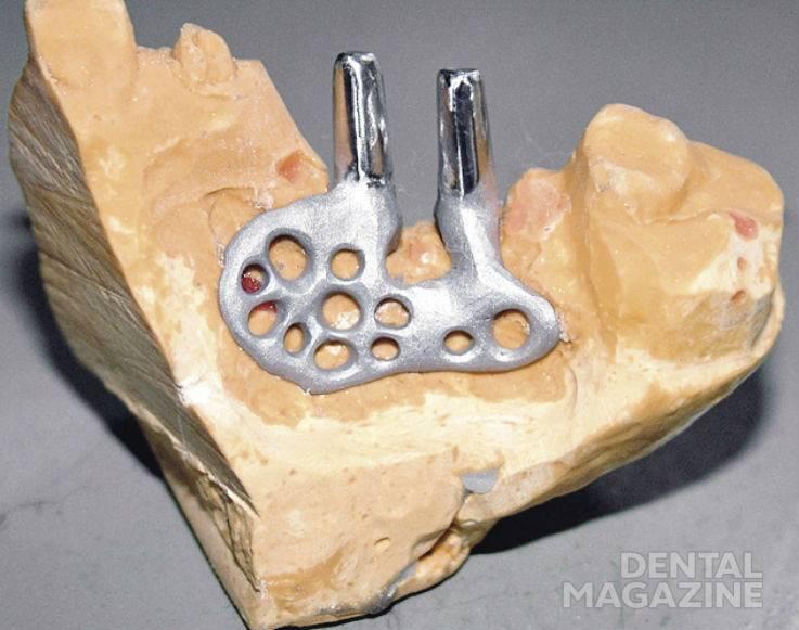 Рис. 4. Вид припасованного имплантата. Небная поверхность.