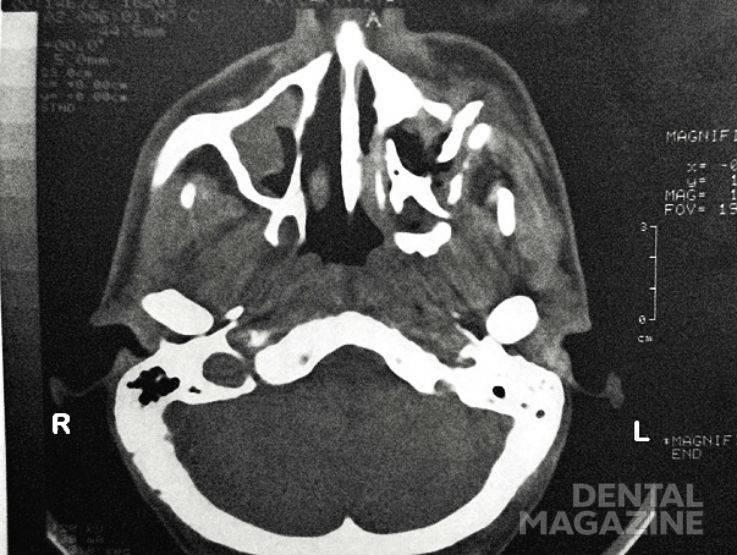 Рис. 4. Компьютерная томография костей лицевого скелета.