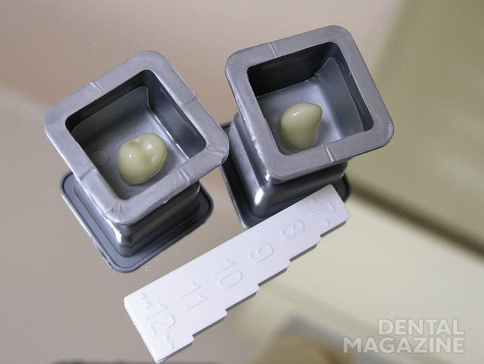 Рис. 5. Выбраны провизорные коронки, которые будут установлены на подготовленные культи зубов.