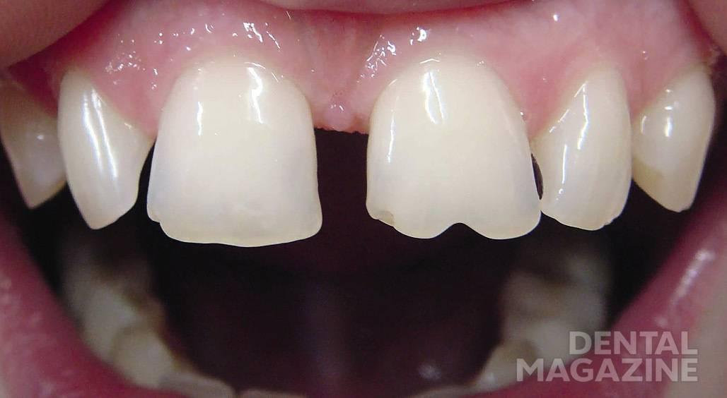 Рис. 2. Широкий промежуток между центральными и латеральными резцами, стертость режущего края 11 и 21 зубов.