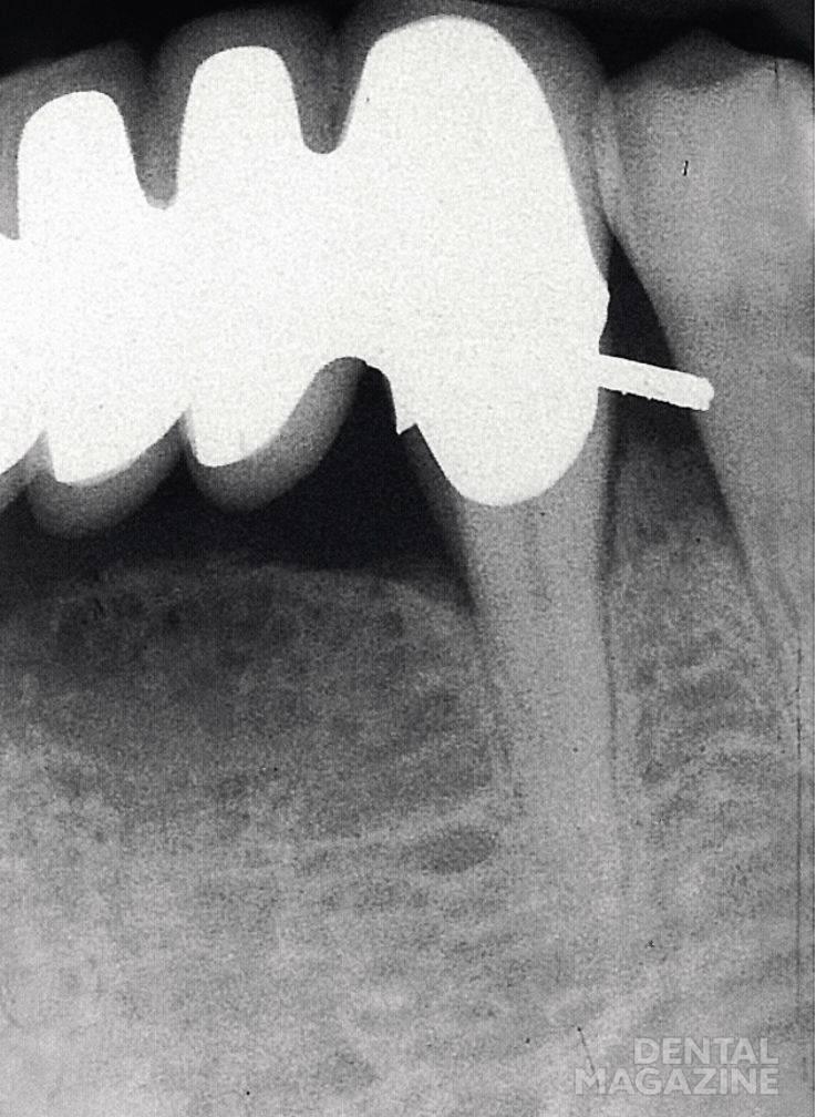 Рис. 1. Область клыка нижней челюсти: после фиксации мостовидного протеза пациент предъявляет жалобы, характерные для пульпита.