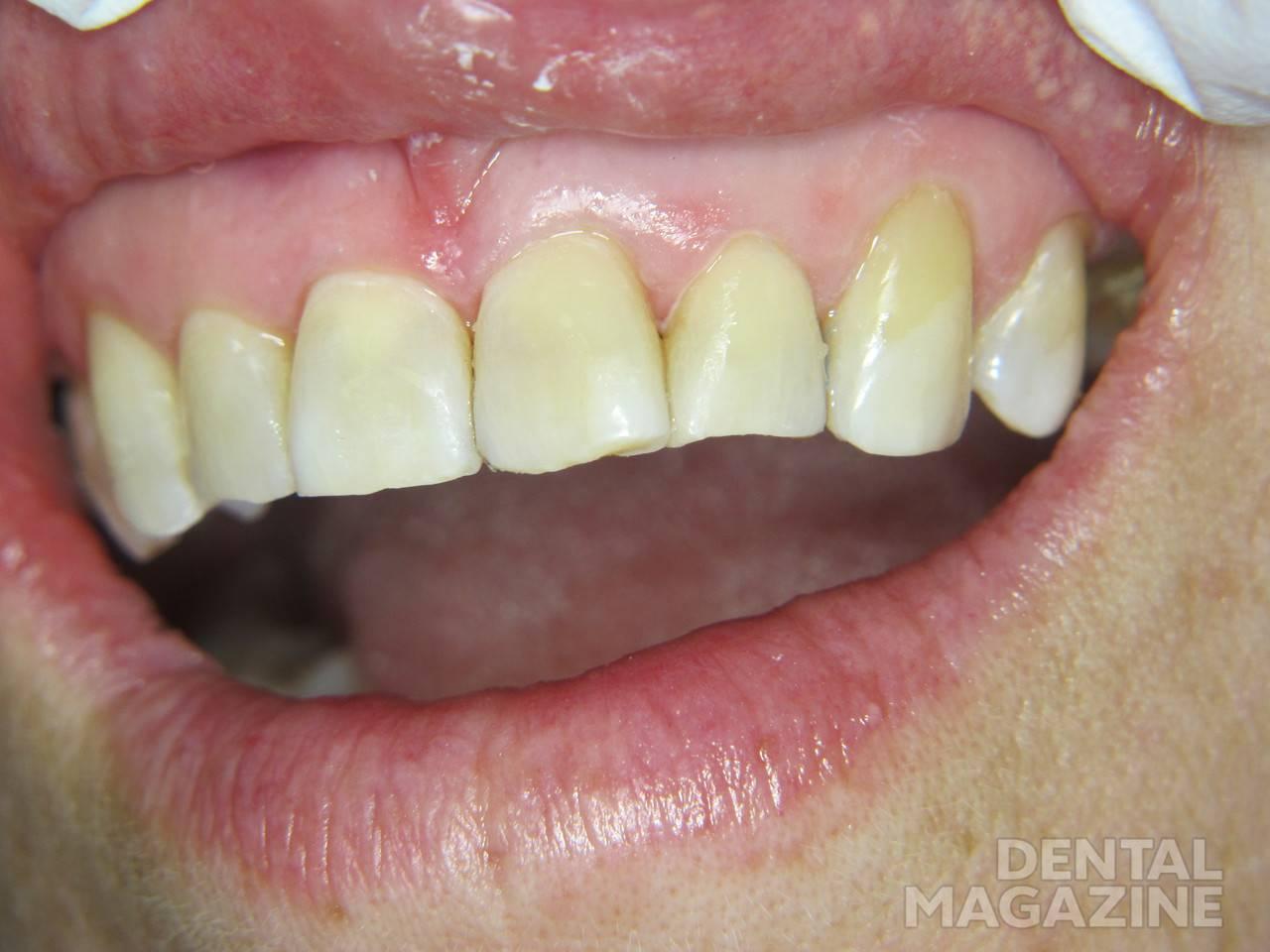 Рис. 6. Окончательный вид зубов 2.1 и 2.2 после реставрации материалом «ГрандиоСО Хеви Флоу».