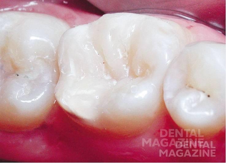 Рис. 33. Внешний вид реставрации зуба 3.6 после этапа шлифовки, полировки.