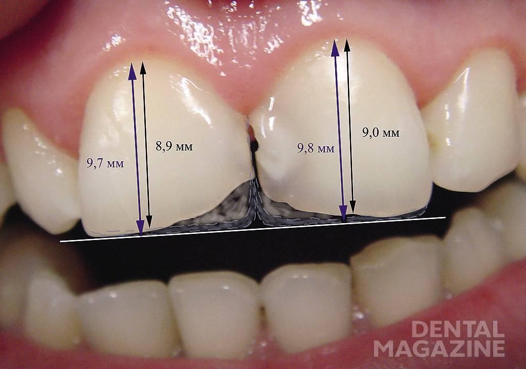 Рис. 3. Планирование размеров, формы и типа прозрачности зубов.