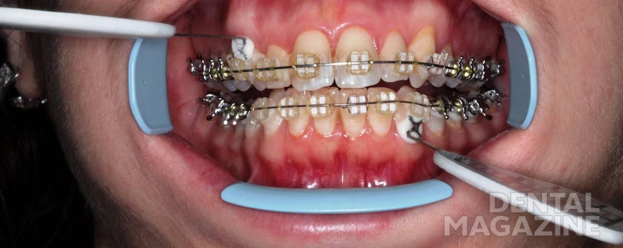 Рис. 5. Расположение боковых датчиков у пациентов с брекет-системой на зубах.