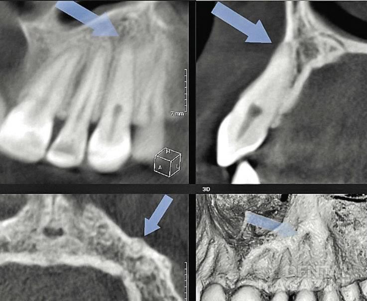 Рис. 7. КТ, визуализация зуба 23, MPR; травма три года назад, облитерация средней и апикальной трети корня.