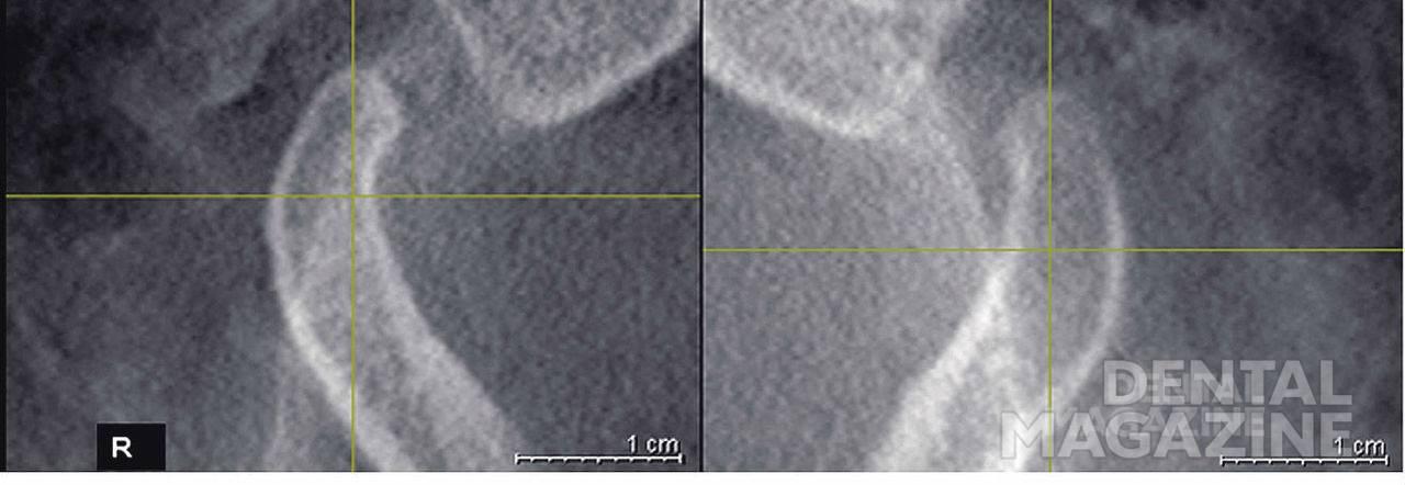 Рис. 14. Правый и левый височно-нижнечелюстной суставы пациента М., 25 лет (сагиттальный срез).
