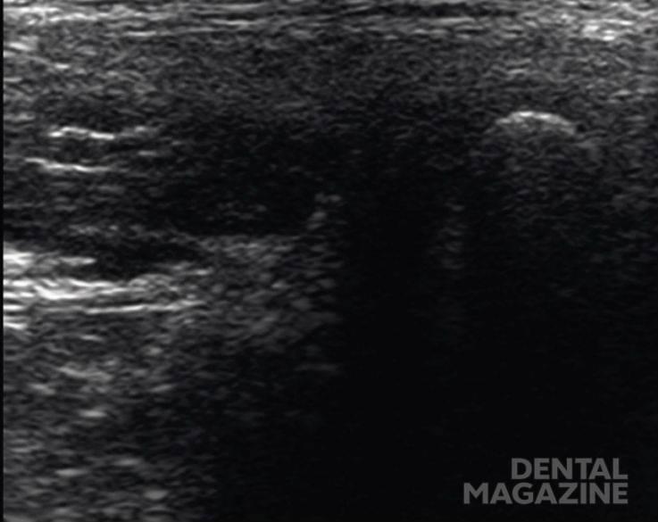 Рис. 4. Скан под углом 30—60º к Камперовской горизонтали. КЖ — кожа, подкожно-жировая клетчатка, поверхностная мышечно-апоневротическая система. ОКУ — околоушная слюнная железа. ЖМ — жевательная мышца: а — поверхностная часть, б — глубокая часть. Лат. КМ — латеральная крыловидная мышца: а — верхняя головка, б — нижняя головка. Д лат. — латеральный фрагмент суставного диска. Кап. лат. — латеральный фрагмент капсулы. Г в-лат. — верхнелатеральный фрагмент головки мыщелкового отростка. Тень от бугорка мыщелкового отростка. НХК — надкостнично-хрящевой комплекс.