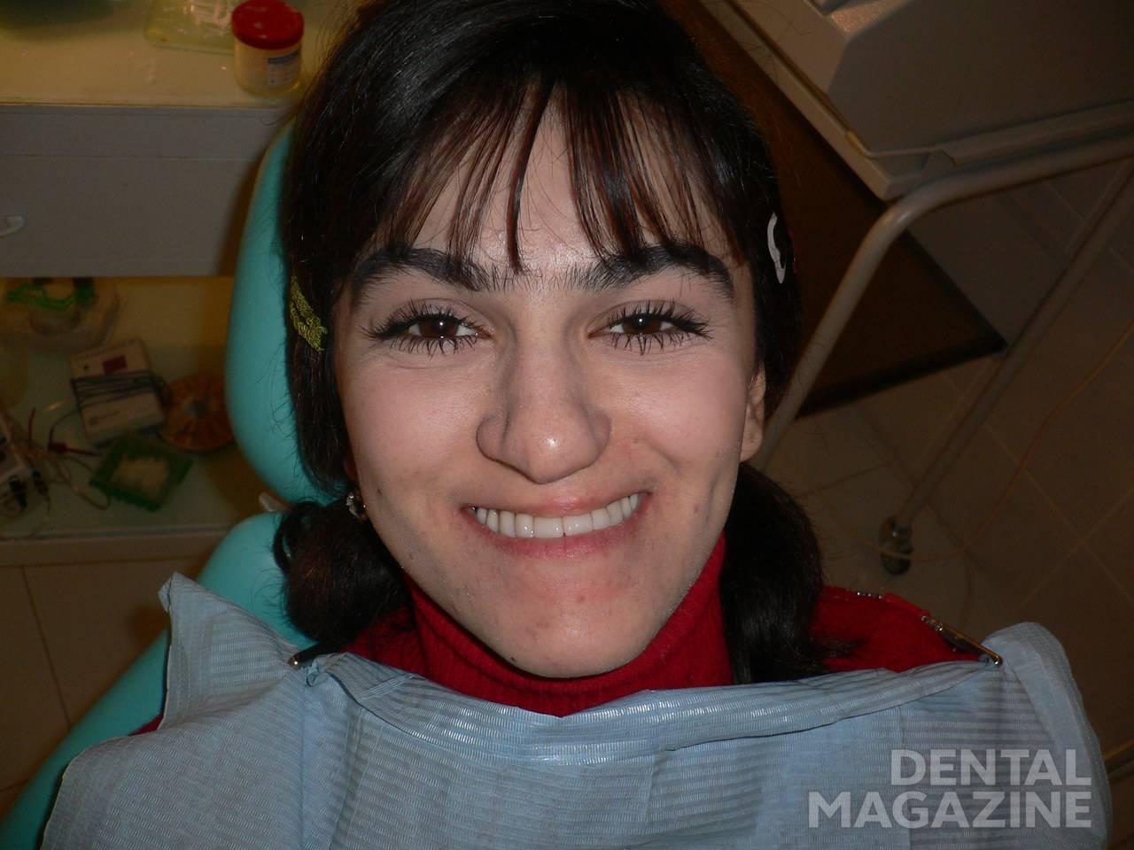 Рис. 6. Внешний вид пациентки с микрогнатией верхней челюсти после ортопедического лечения косметическим нейлоновым протезом.