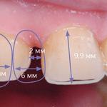 Одонтометрия и планирование размещения лате- ральных резцов (рис. 3)