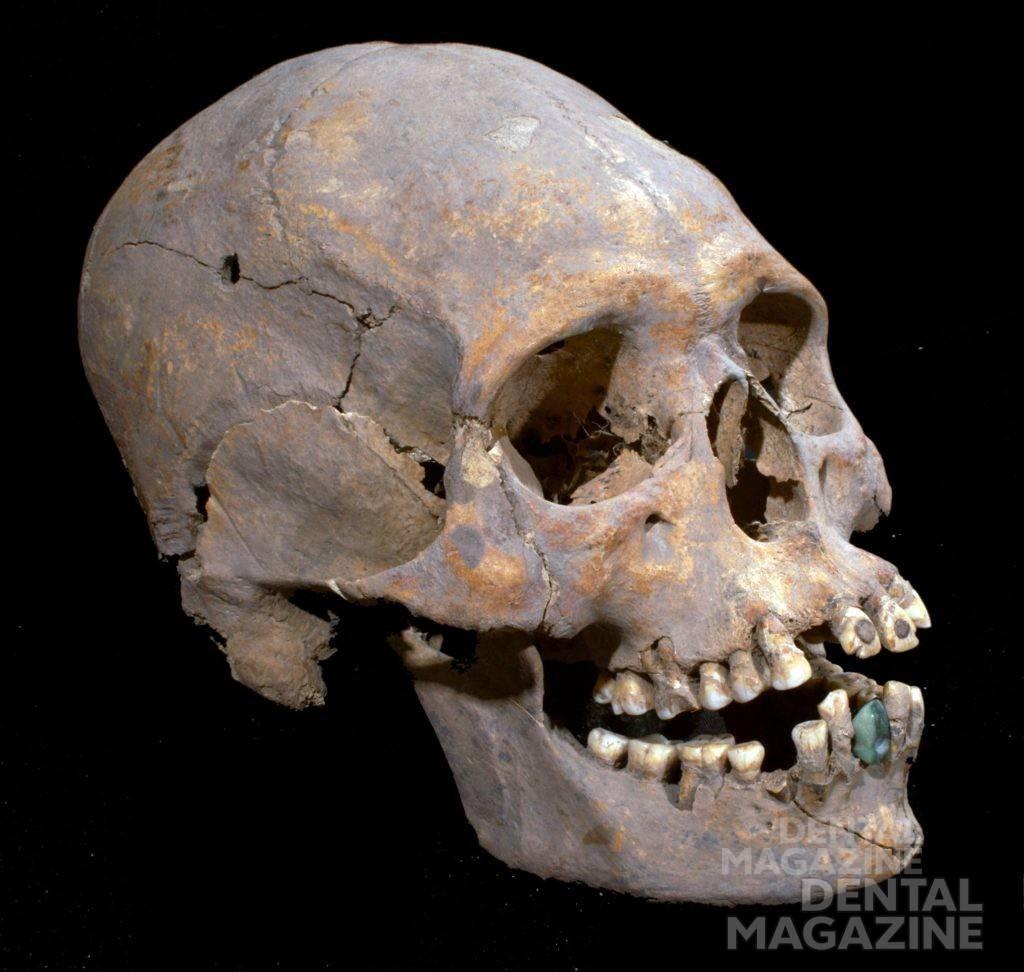 Череп женщины 35—40 лет, найденный при раскопках древнего города Теотиуакан неподалеку от Мехико. Возраст находки 1600 лет. Нижний искусственный зуб сделан из серпентина. Источник: thehistoryblog.com