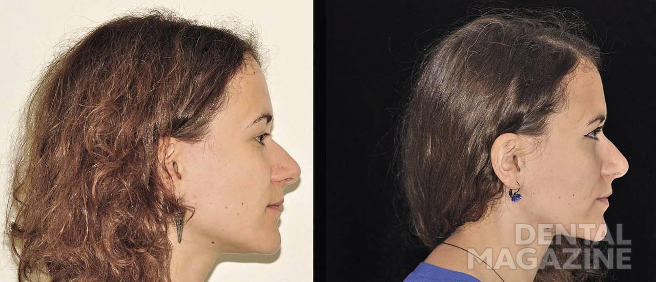Рис. 3. Профиль. Улучшение проекции верхней губы благодаря нормализации наклона верхних резцов.