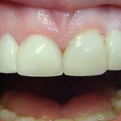 Готовая работа: изготовлены адгезивные протезы; воссозданы отсутствующие 12 и 22 зуб (рис. 20)