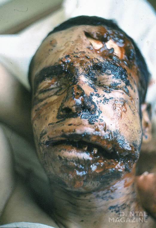 Рис. 2. Лицо раненого после взрыва мины. Имеется несколько ран на лице и несколько пузырей вследствие ожога 2-й степени.